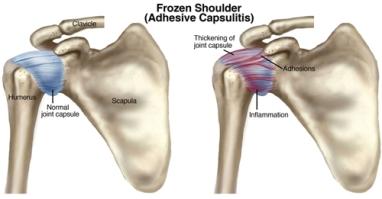 FrozenShoulder vs normal shoulder